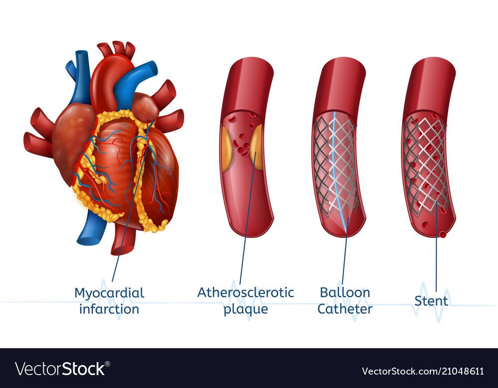 myocardial-infarction-3d-realostic-stent