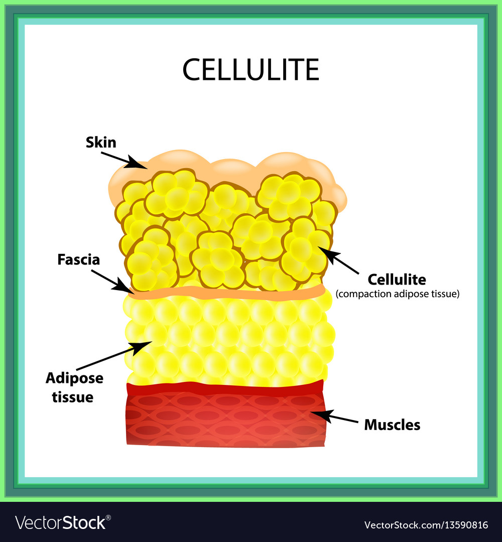 Cellulite the anatomical structure of the adipose