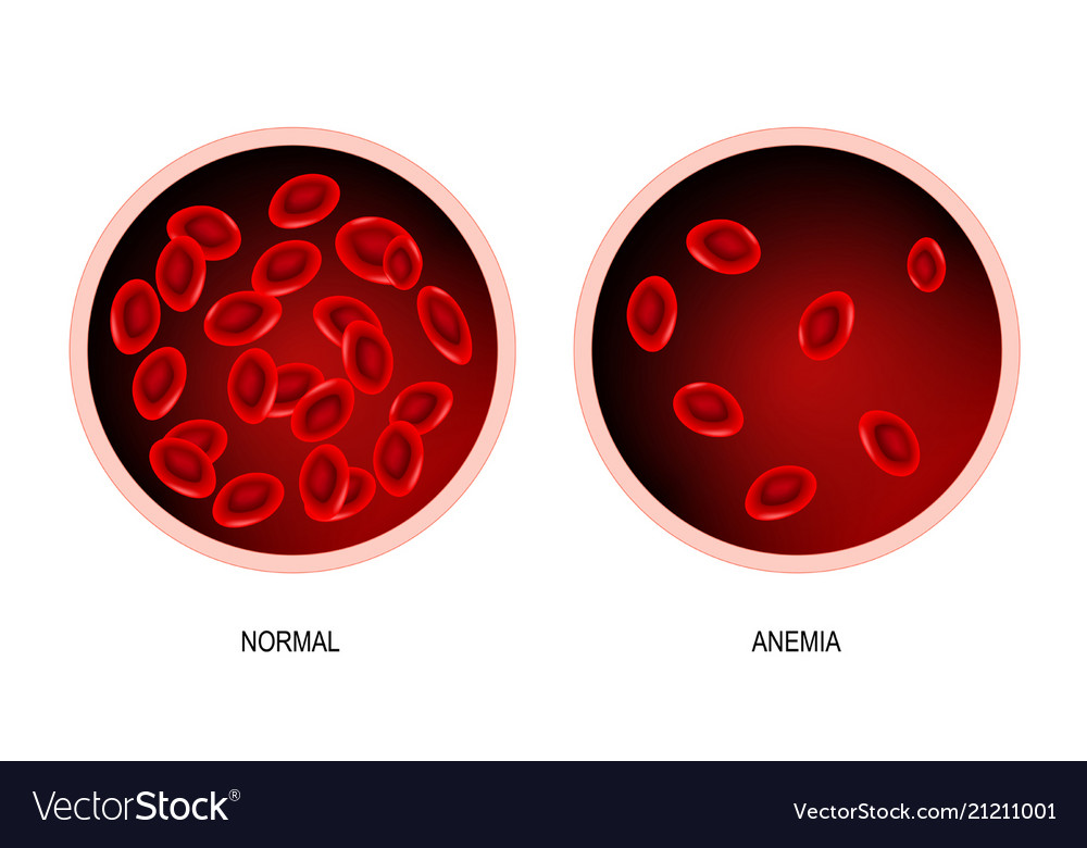 Anemia blood of healthy human and blood vessel vector image