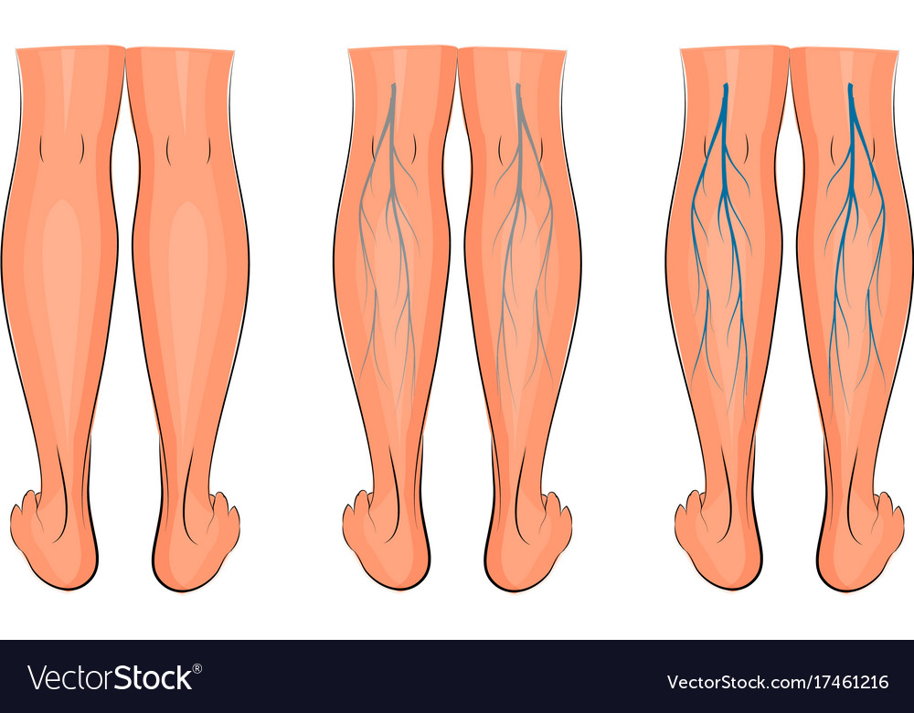 Varicose veins of the lower extremities Royalty Free Vector