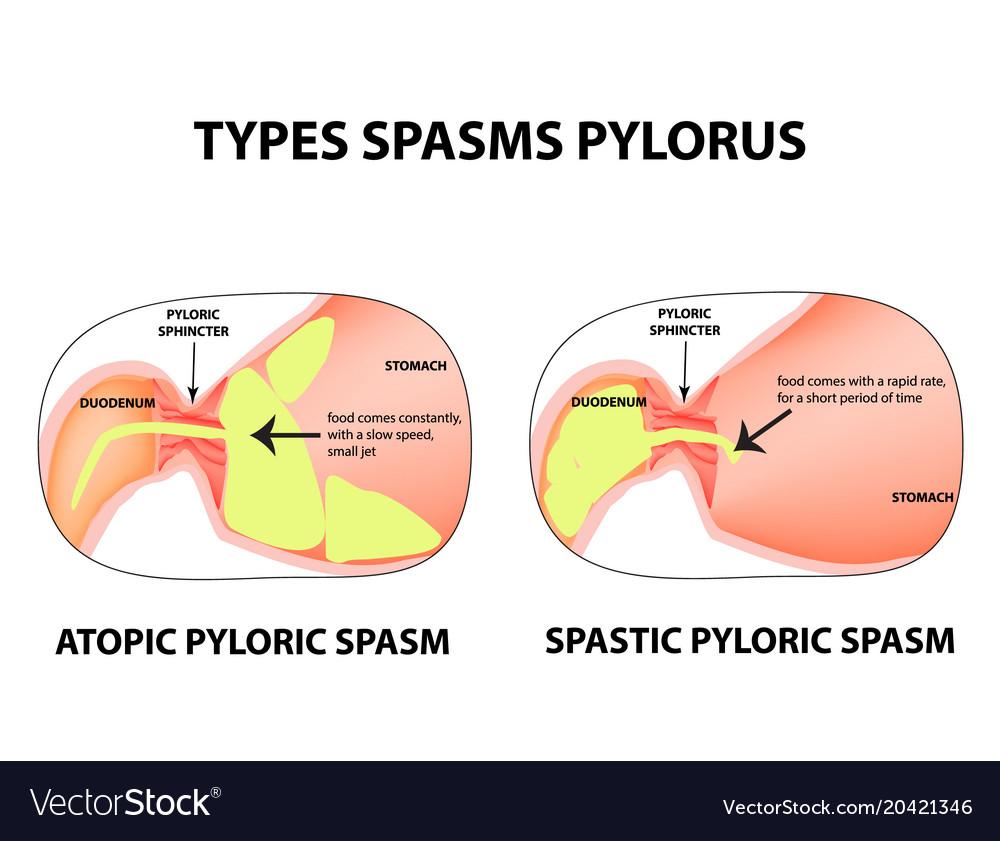 Types Of Spasms Of The Pylorus Pylorospasm Vector Image