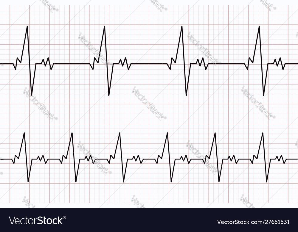 Heartbeats cardiogram ecg heart line