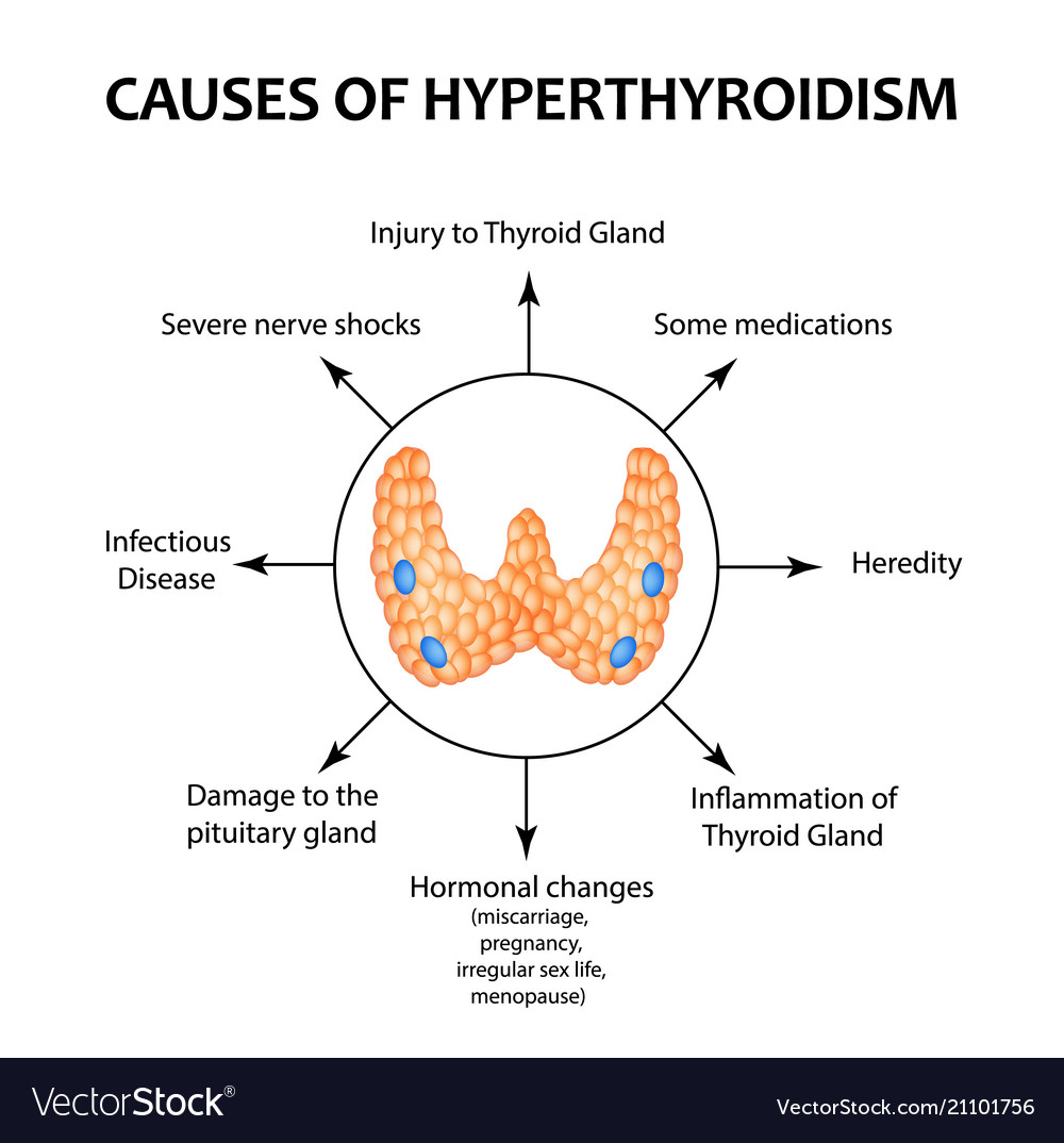 The Causes Of Hyperthyroidism Of The Thyroid Gland