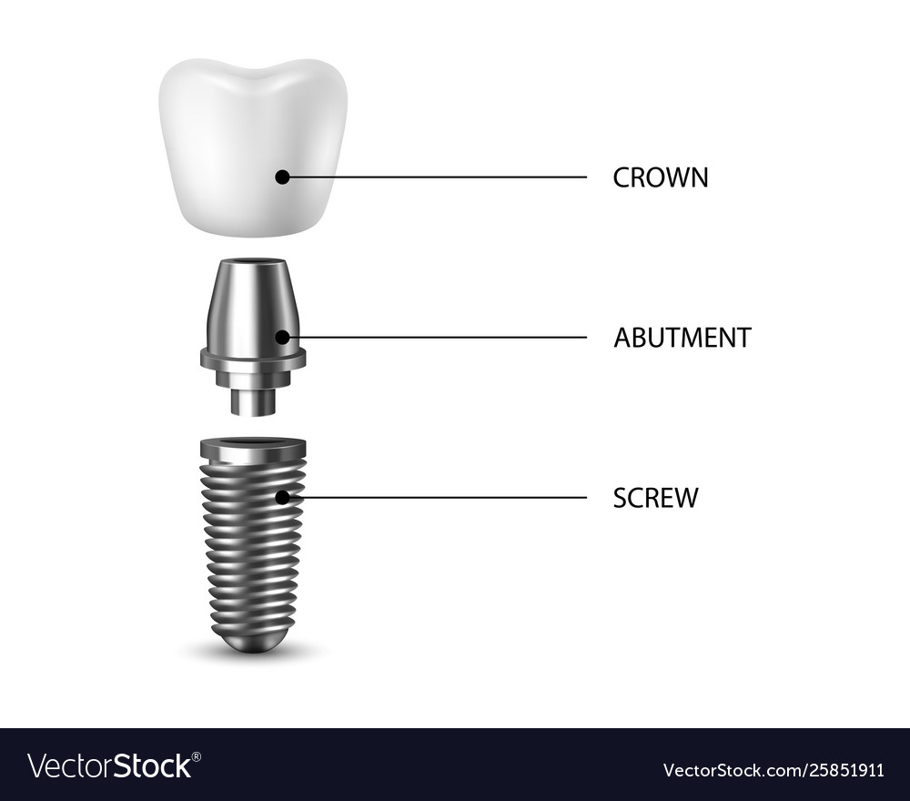 3d realistic render white tooth implant