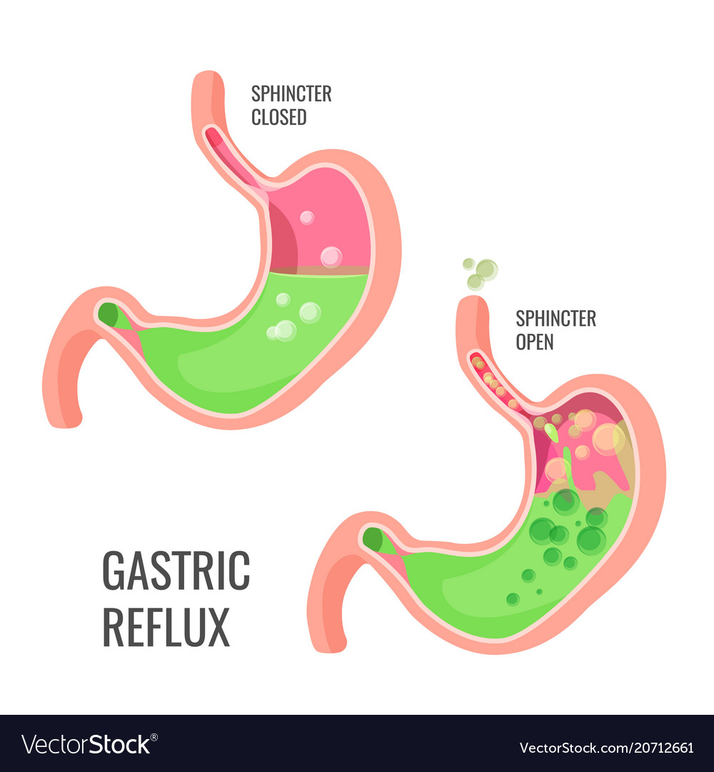 Gastric reflux medical promo poster with human