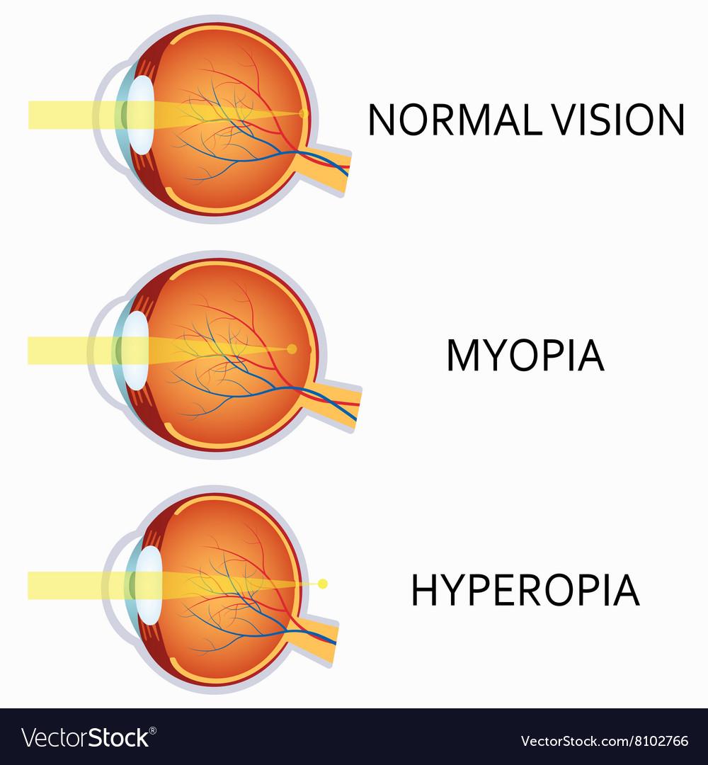 Hyperopia myopia surgery, Рубрика: Ochelari de miopie Hyperopia myopia treatment