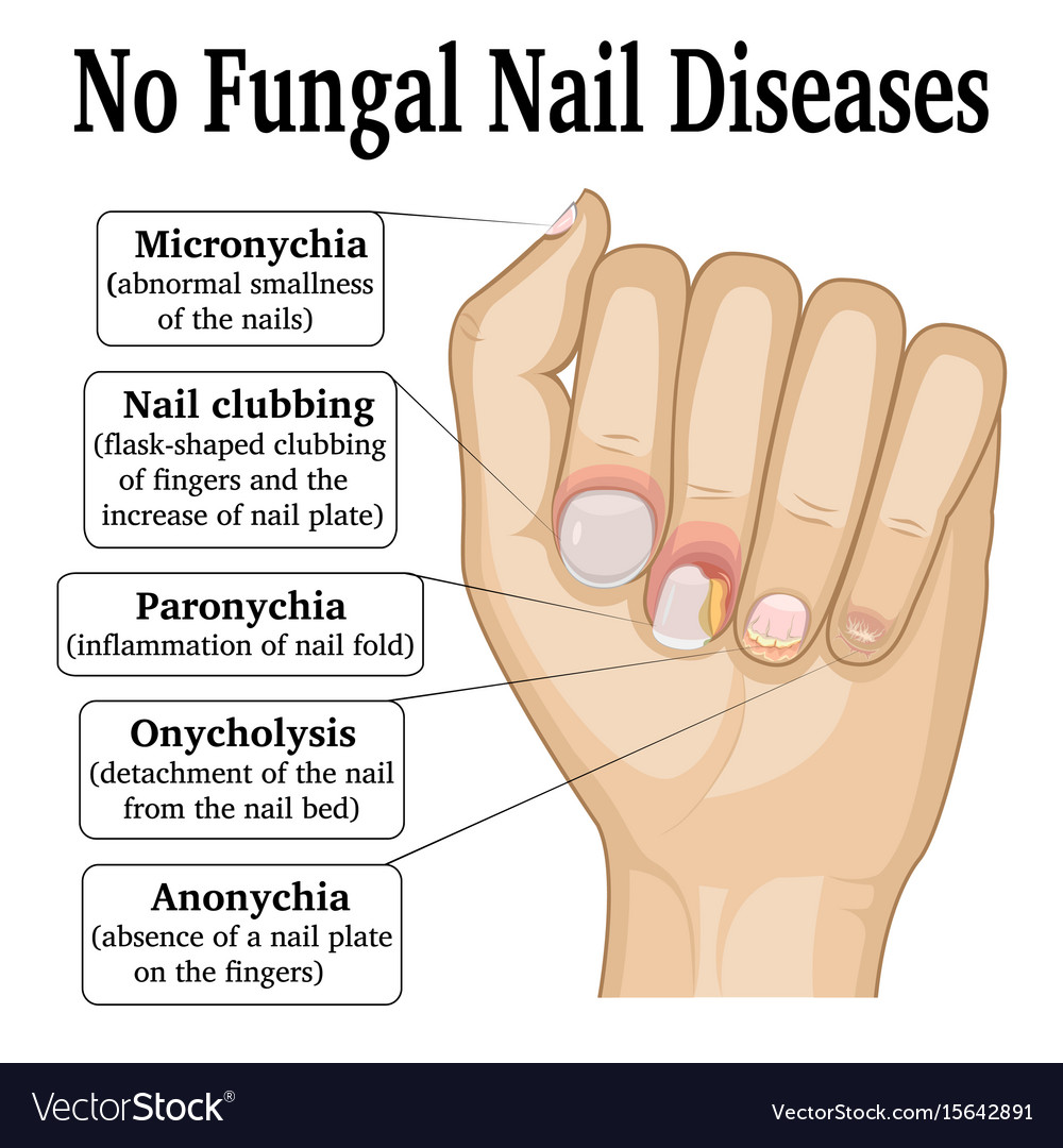 No fungal nail disease Royalty Free Vector Image
