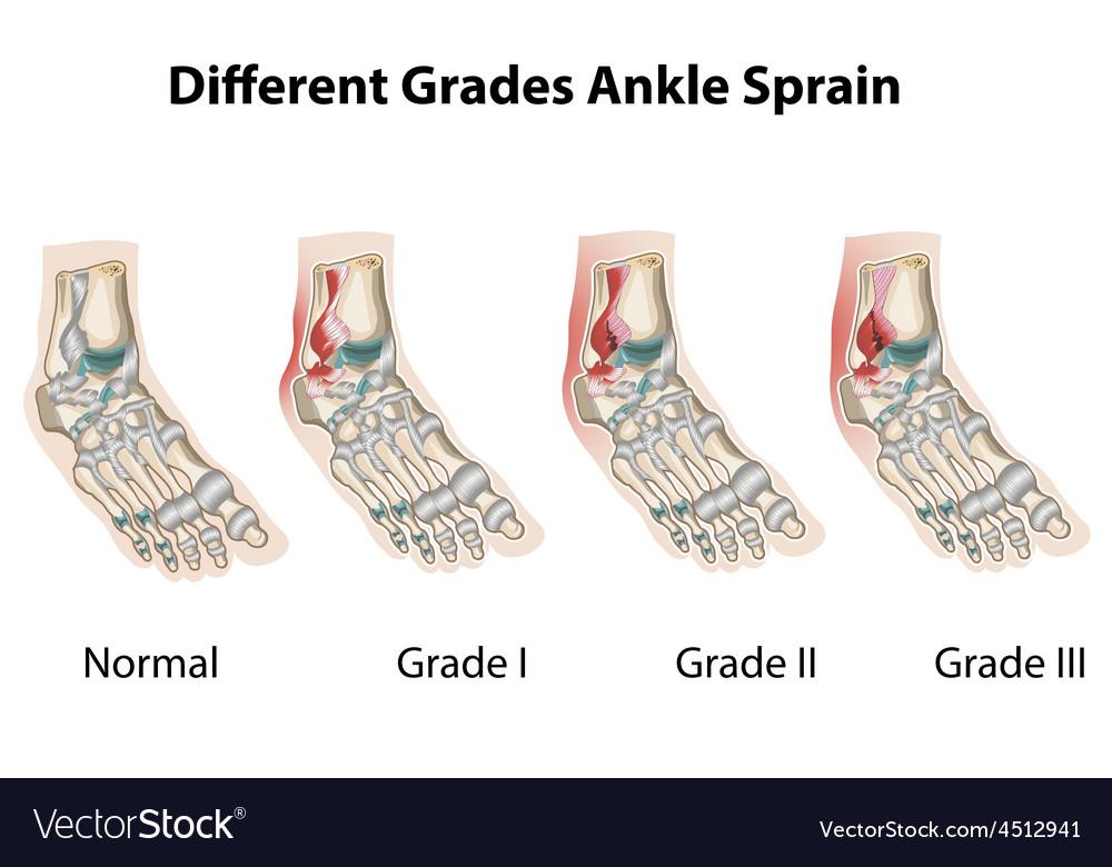 Different grades ankle sprains1
