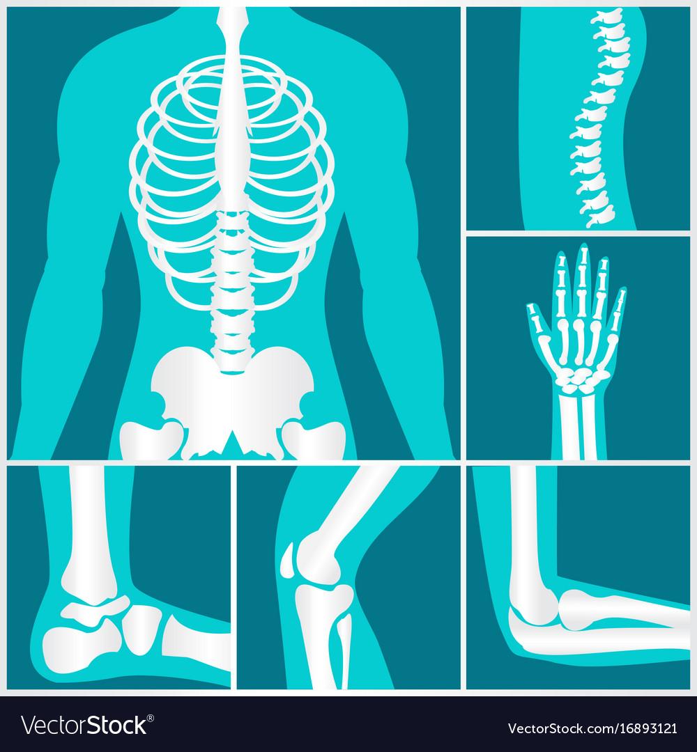 Set of xray of human skeletal