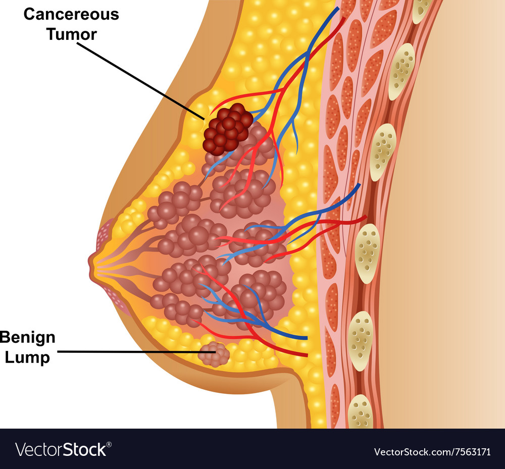 Cartoon of cancerous breast tumor Royalty Free Vector Image