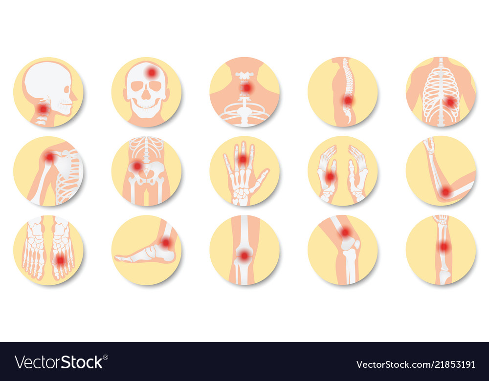 Disease of the joints and bones icon set on white