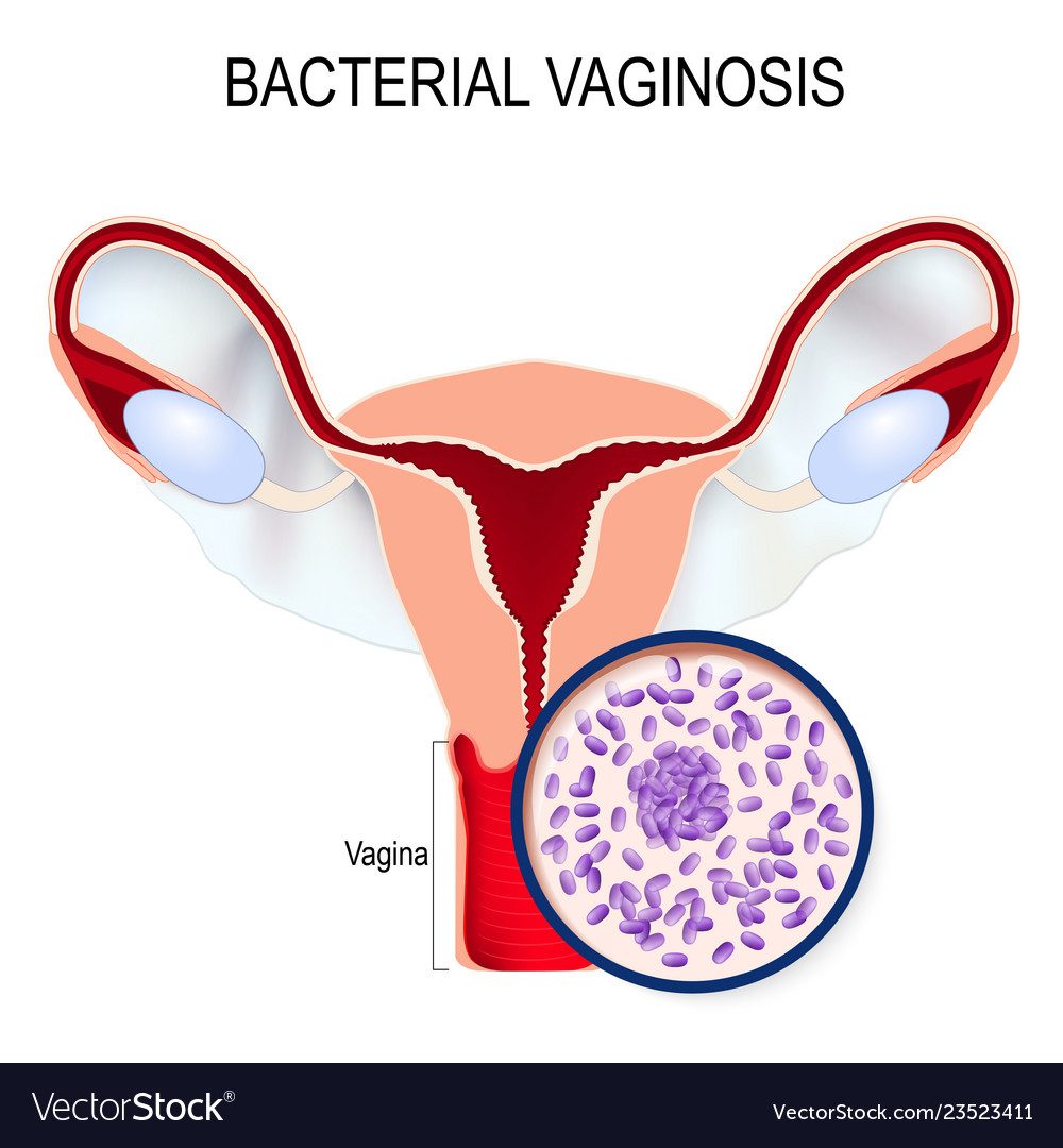 When preventing hiv, bacteria in the vagina matter