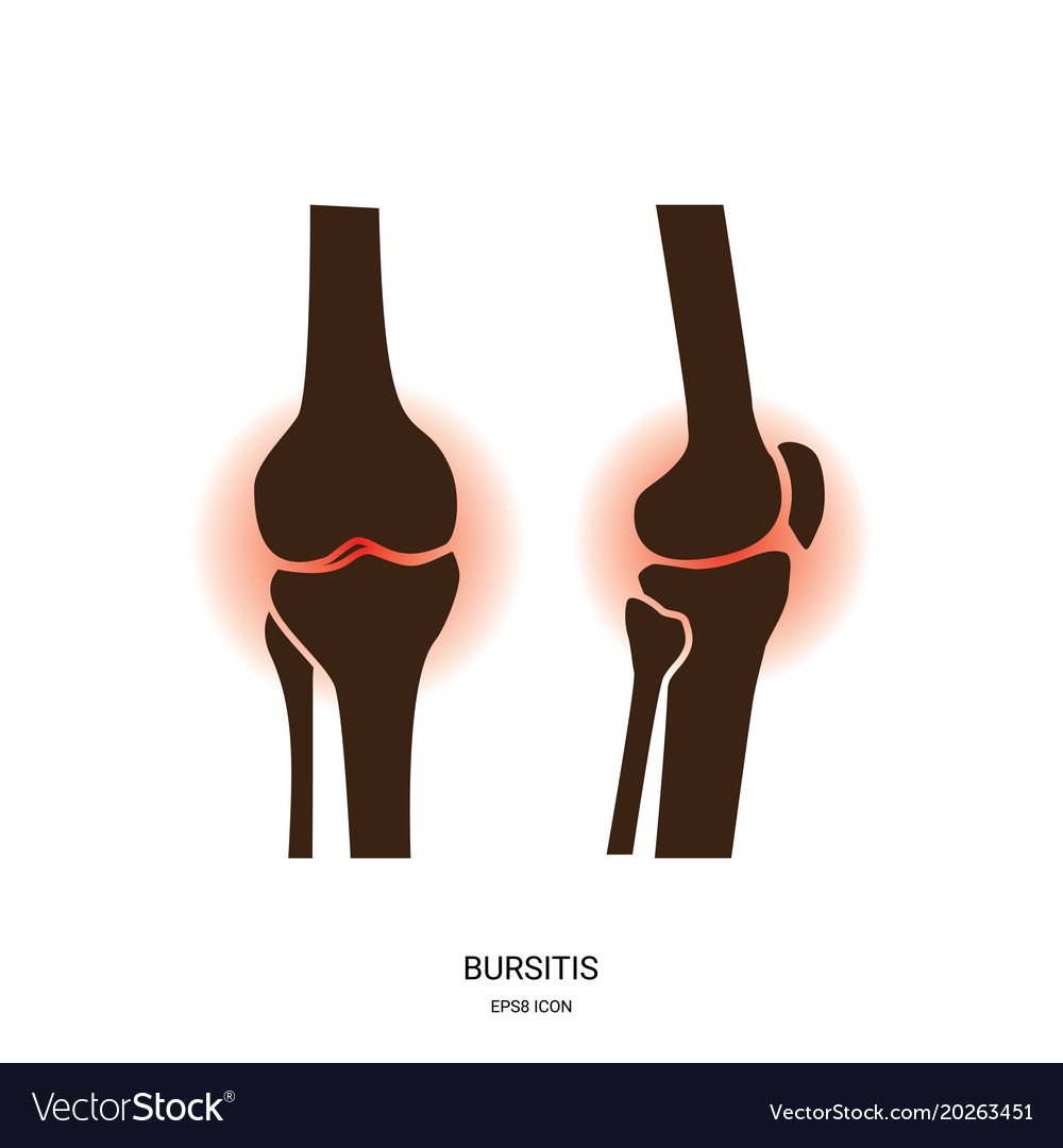 Bursitis and knee joint icon