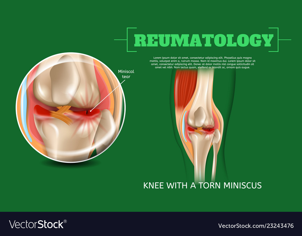 Realistic 3d Knee With Torn Miniscus Royalty Free Vector
