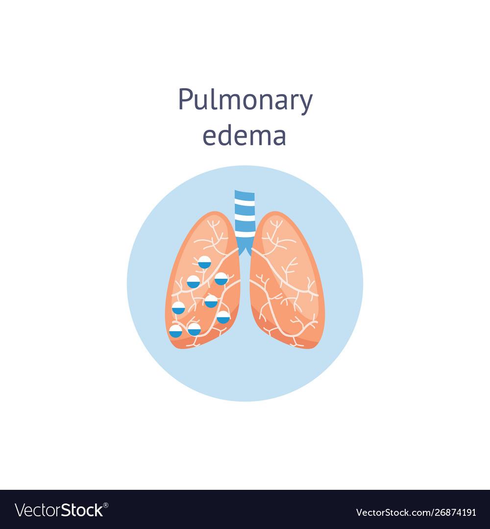 Pulmonary edema a lung disease medicine diagram