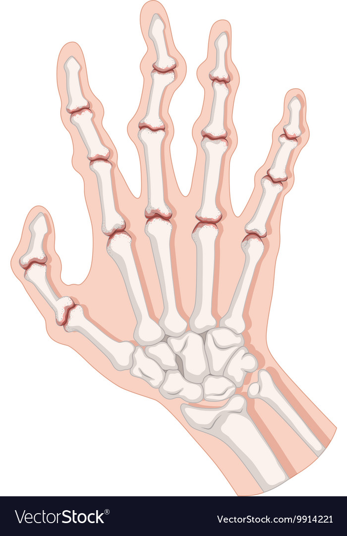 Rheumatoid arthritis in human hand