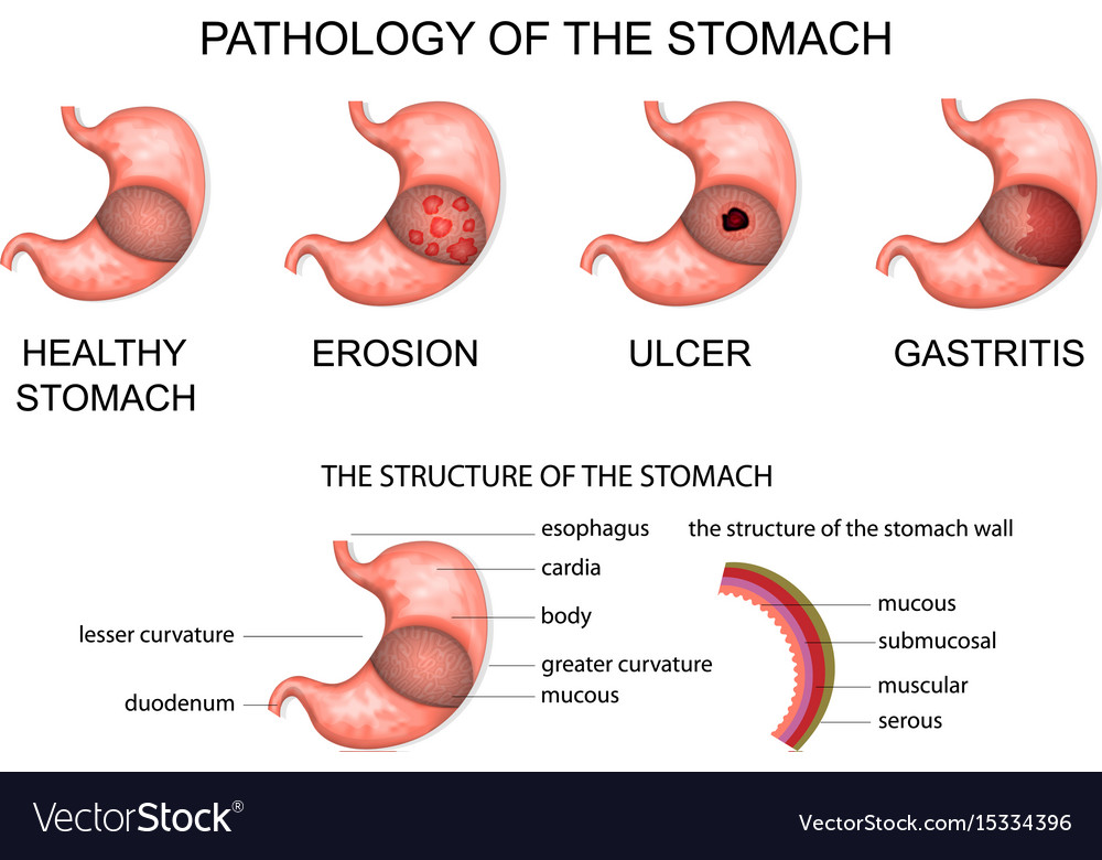 Pathology Of The Stomach Royalty Free Vector Image