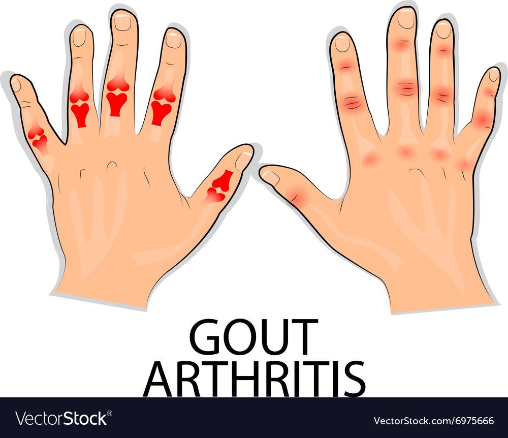 artritisz padagra lábujjak)