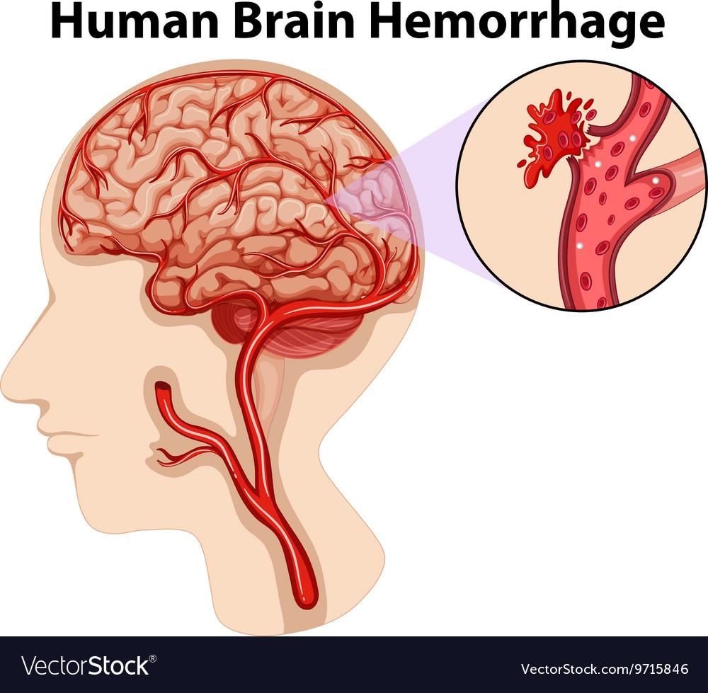 Diagram Of Human Brain Hemorrhage Royalty Free Vector Image