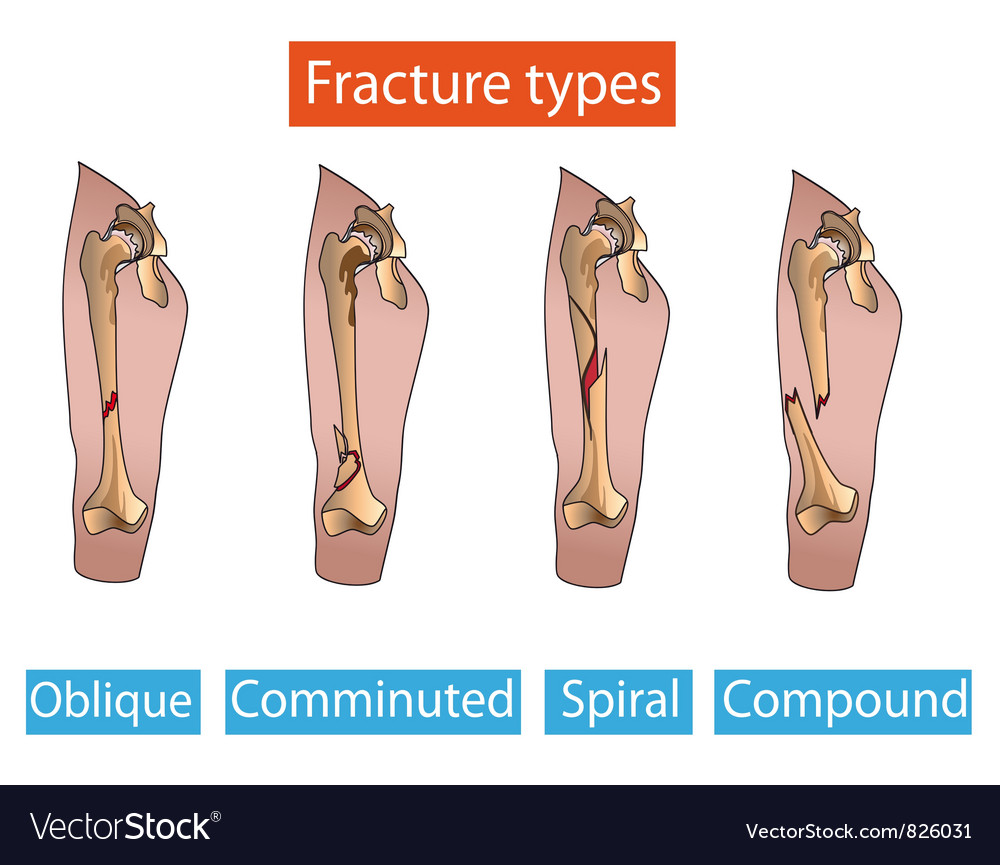 Types Of Fractures Royalty Free Vector Image Vectorstock