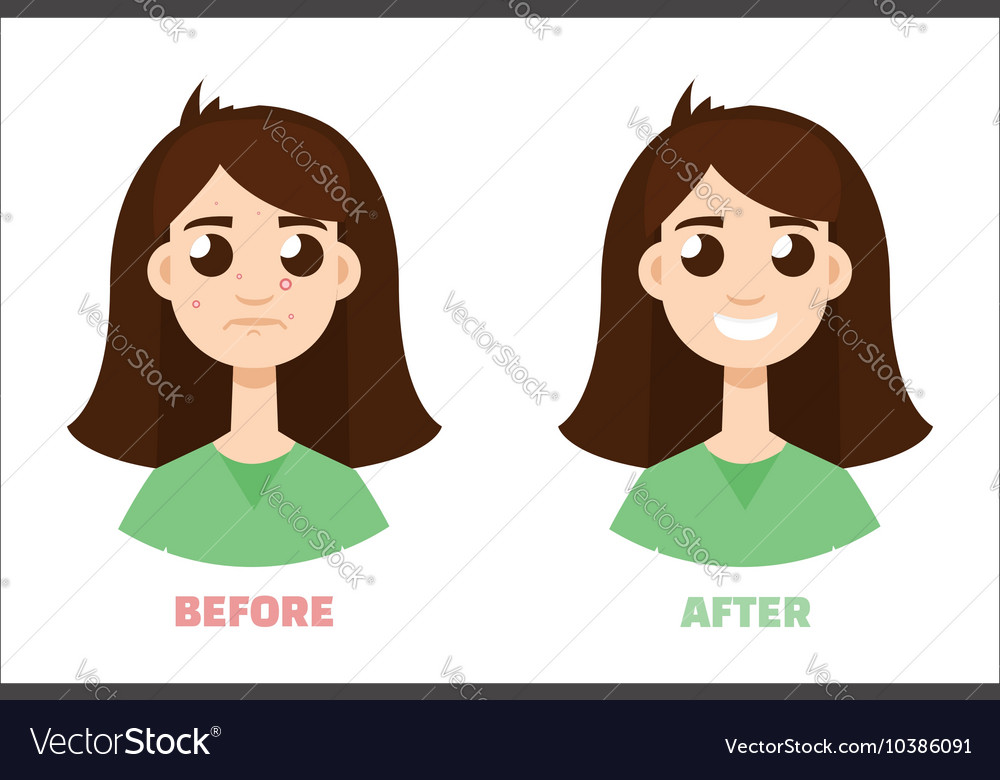 Acne gir before and after Flat style