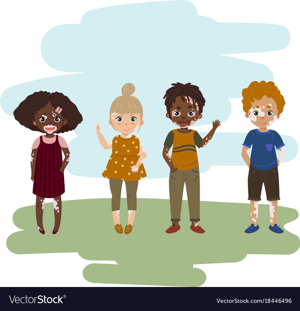 Children with vitiligo skin disease