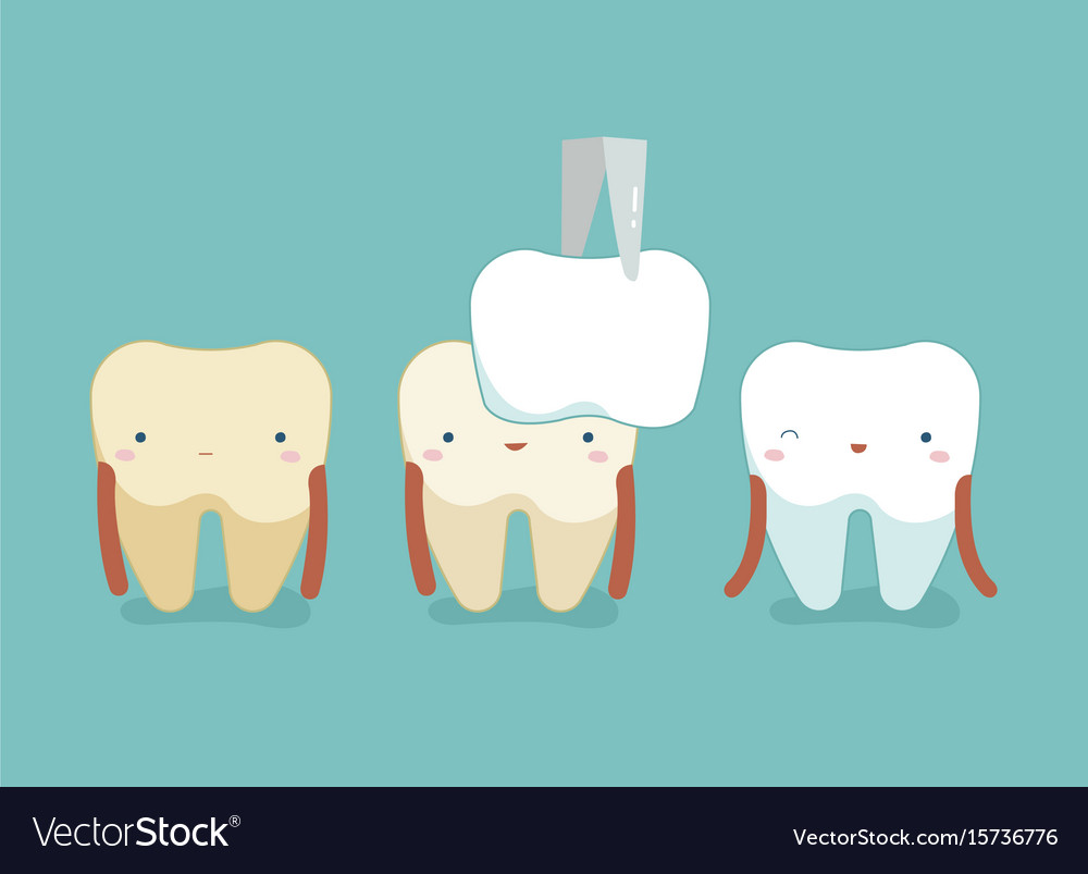 Dental veneers teeth and tooth concept of dental