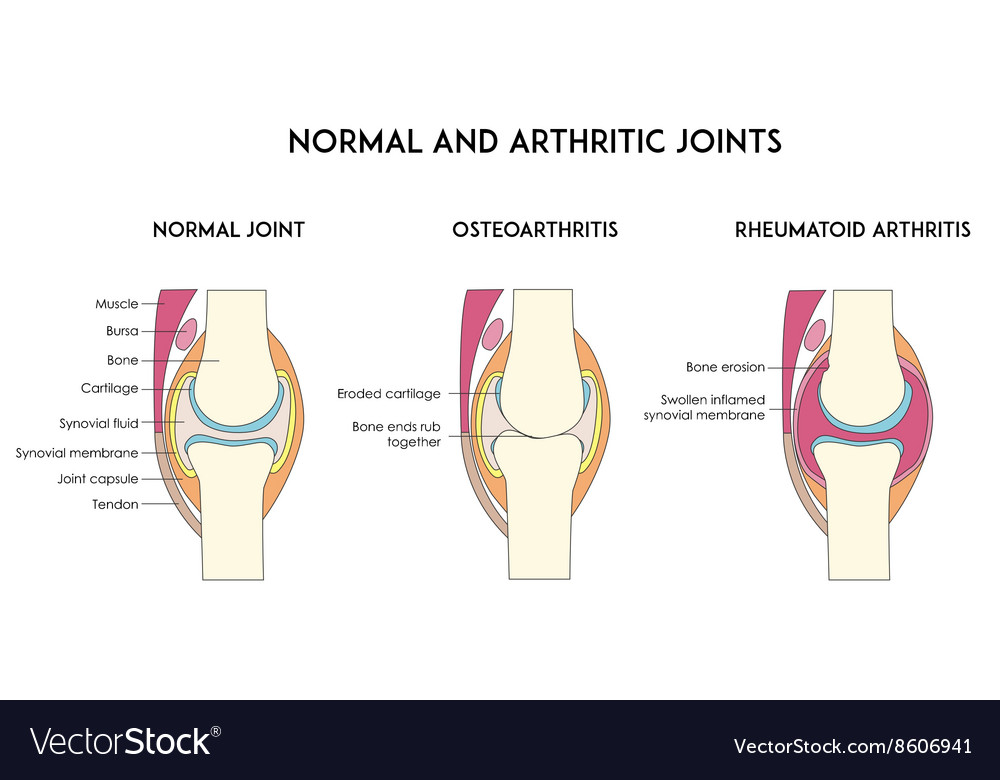 Normal and arthritic human joints Royalty Free Vector Image
