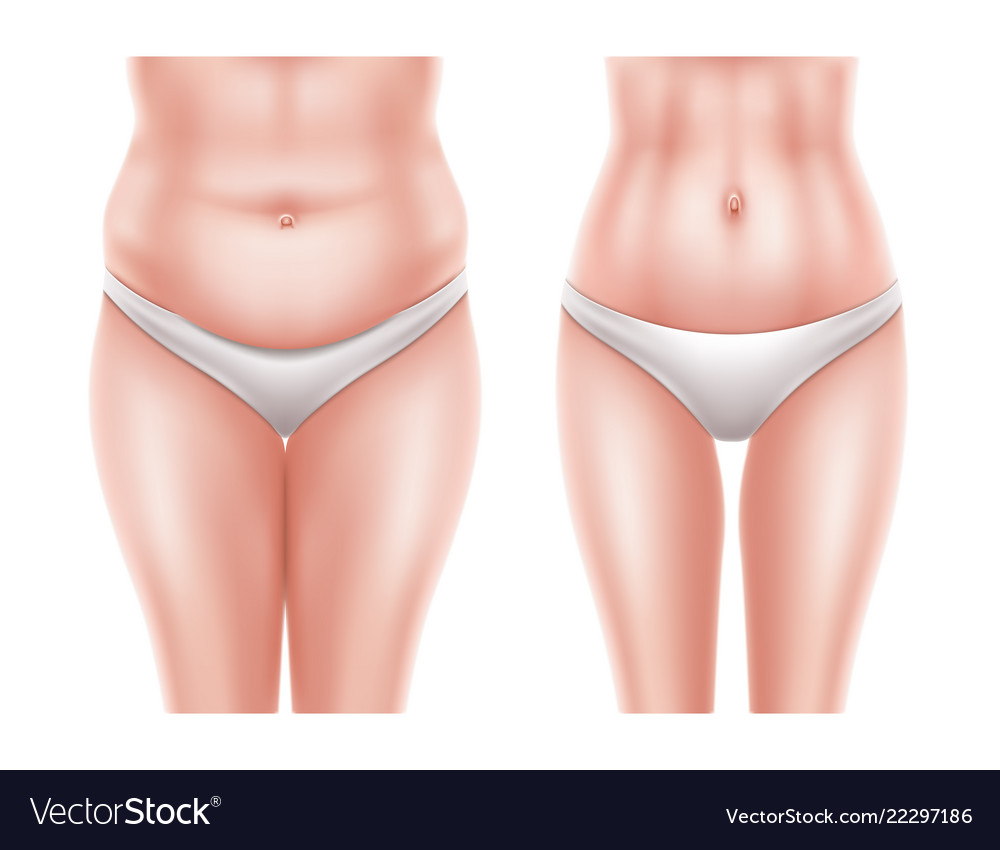 Liposuction surgery before after woman body