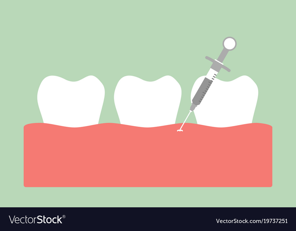 Dental Injection For Tooth Extraction Royalty Free Vector