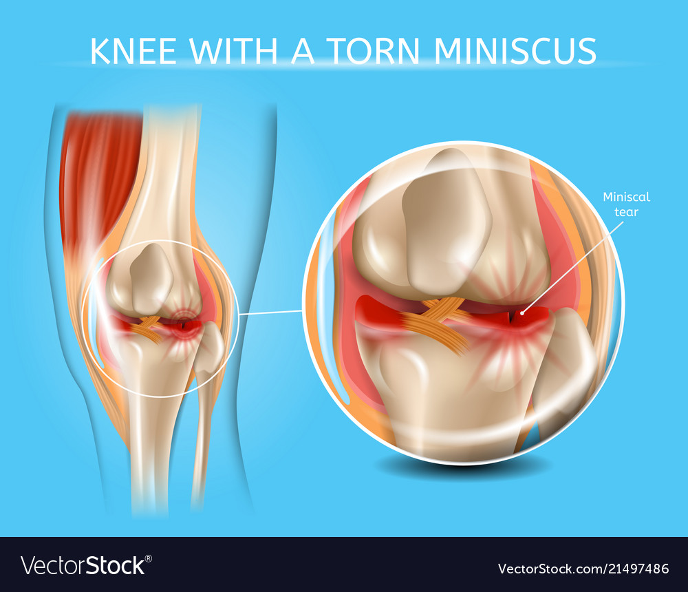 Injured knee joint with torn meniscus chart vector image ccuart Images