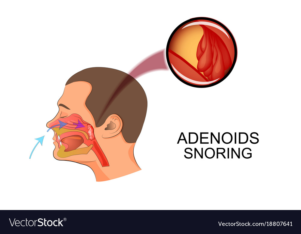 Adenoids Cause Snoring Royalty Free Vector Image