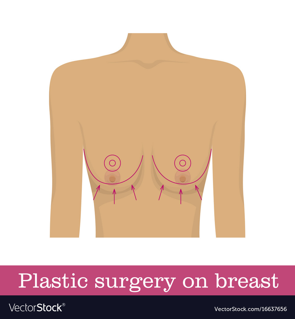 Plastic surgery breast uplift infographic