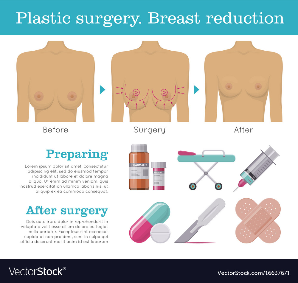 Breast plastic sergery