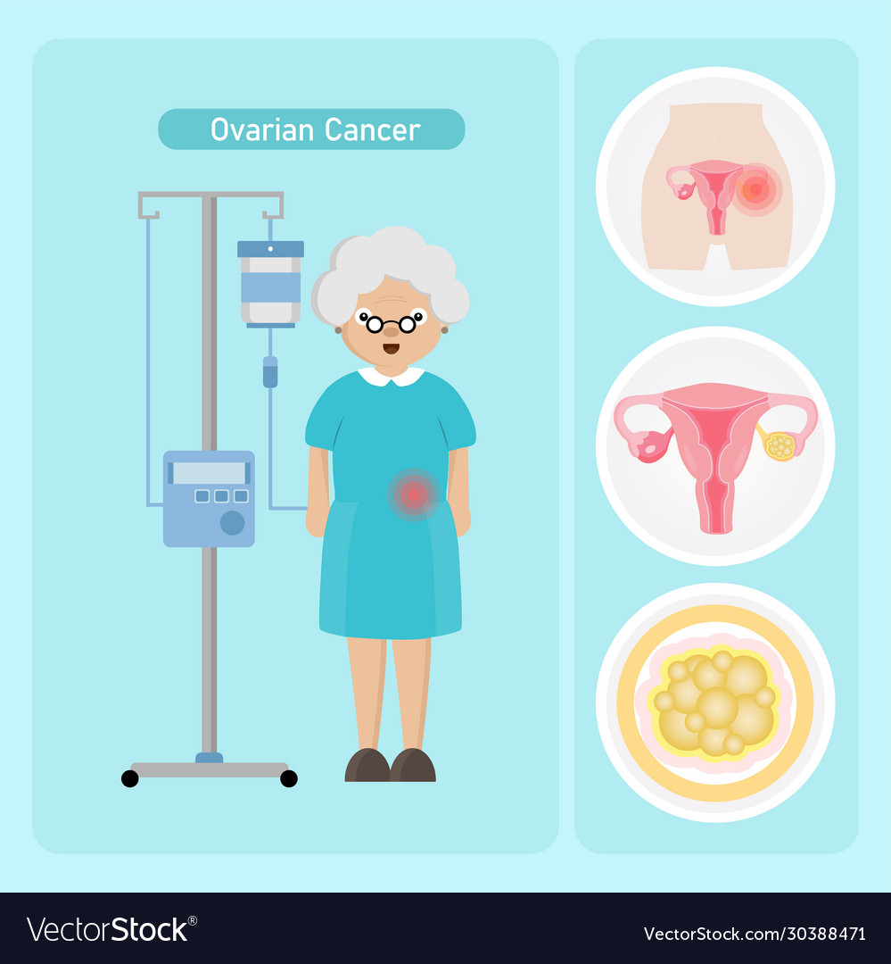 Senior Woman Patient With Ovarian Cancer Vector Image