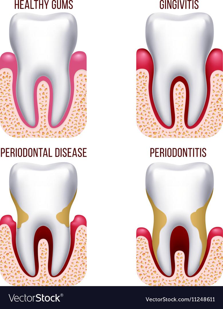 Human gum disease gums bleeding tooth prevention