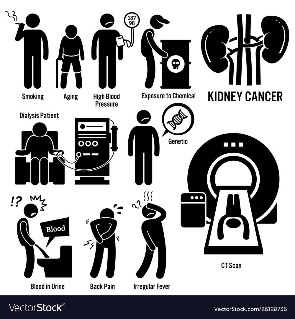Kidney Cancer Symptoms Causes Risk Factors Vector Image