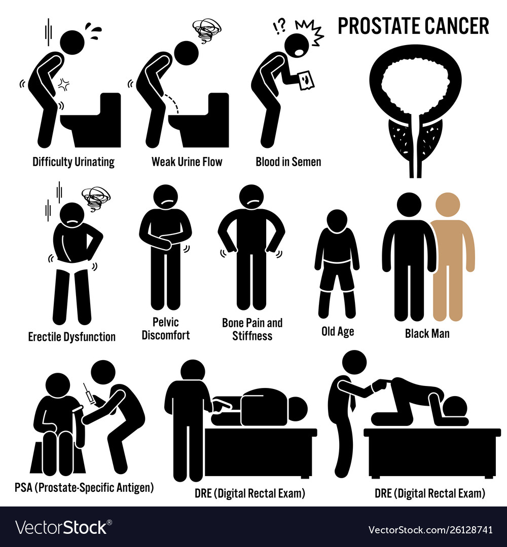 Prostate Cancer Symptoms Causes Risk Factors Vector Image