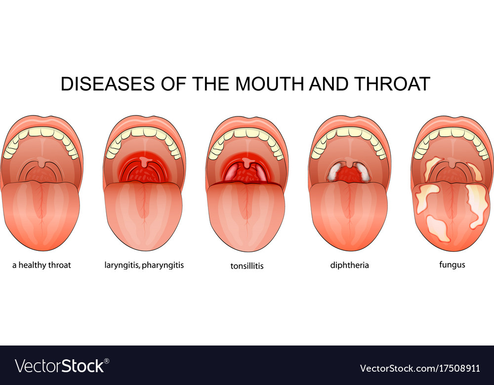 diseases of the throat royalty free vector image