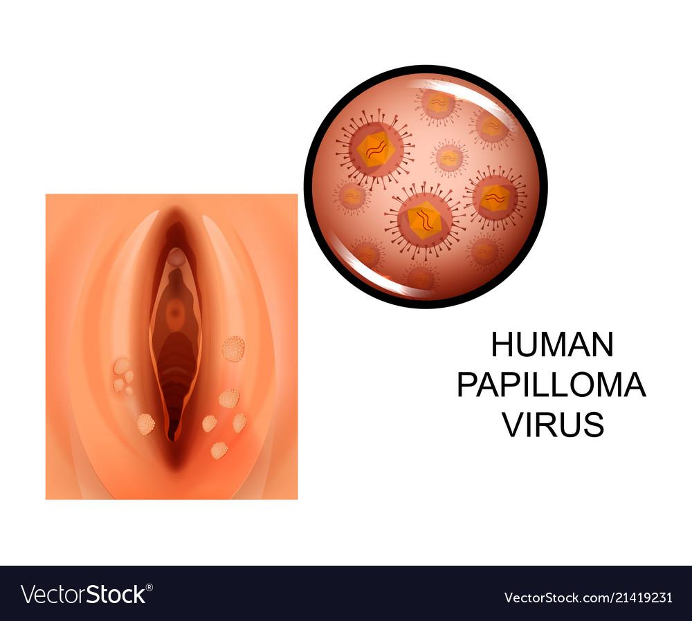 Human papilloma virus on female genitals