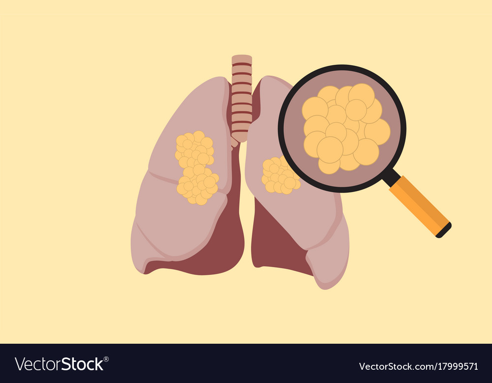 Lung cancer with cancer cell on the lung and