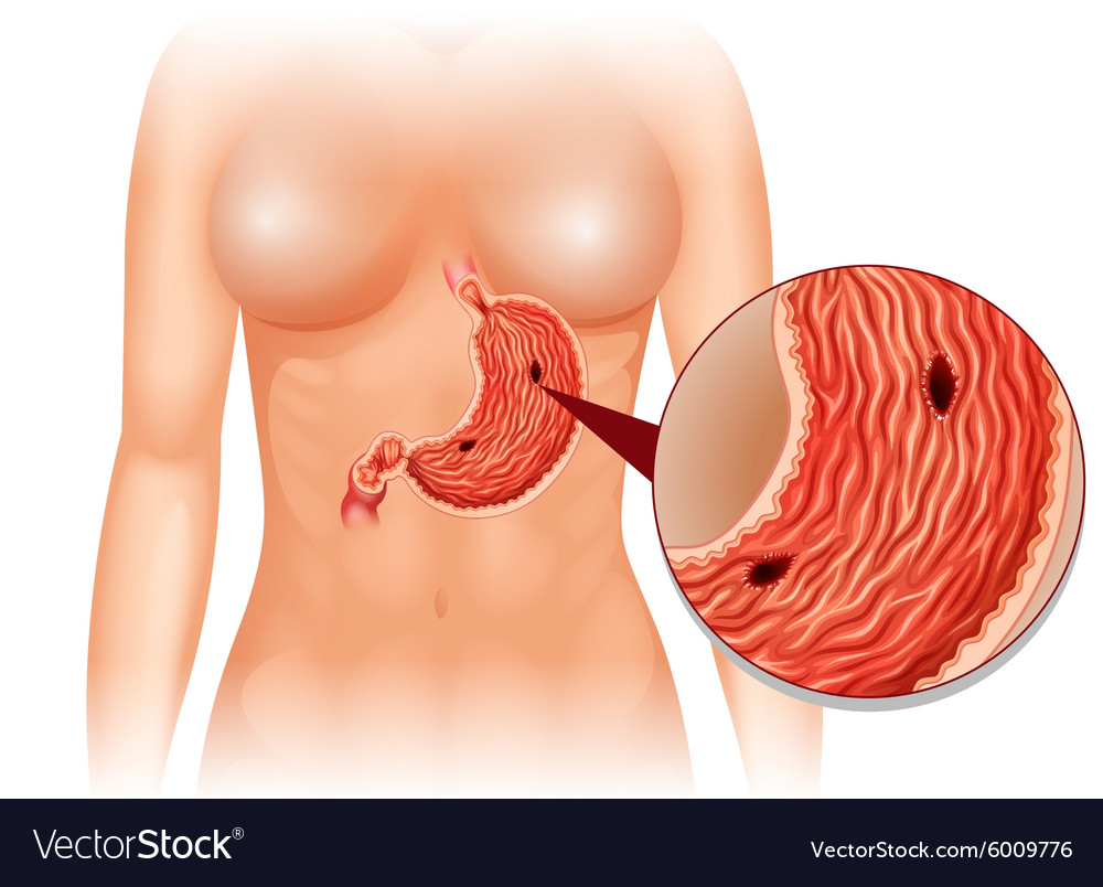 stomach ulcer diagram in woman vector 6009776 stomach ulcer diagram in woman royalty free vector image