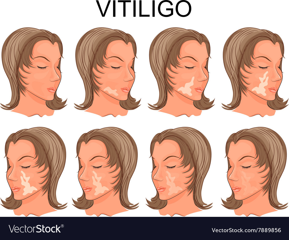 Vitiligo Treatment Before And After Royalty Free Vector
