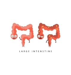 Healthy vs Unhealthy Large Intestine Infographic vector