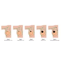 Breast disease concept vector