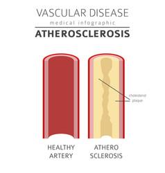 vascular diseases atherosclerosis symptoms vector image