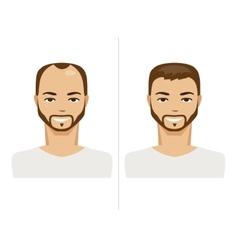 Hair Loss and healthy hair vector image vector image