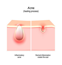 Acne scars abnormal healing of pimple vector