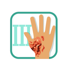 Third degree of burn hand with damaged outer vector