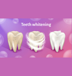 Tooth before in process and after whitening vector